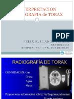 1. Interpretacion Rx DeTorax