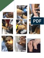 Gambar Faal Neuro