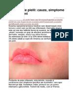 Eczeme Ale Pielii
