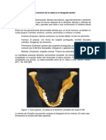 Determinacion de La Edad Por Degaste Dental