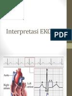 Interpretasi EKG