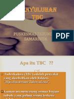 PENYULUHAN TBC PPT