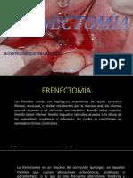 Frenectomia Clase Segundo Examen
