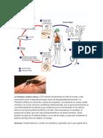 La Filariasis Linfática