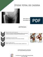 Artrosis de Cadera y Esguince de Tobillo