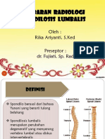 Spondilosis Lumbalis