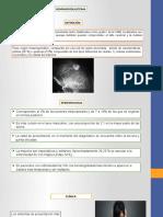 Hemangioblastoma Diapositivas