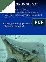 Hernioplastia Inguinal