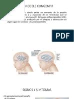 HIDROCELE CONGENITA-embriologia