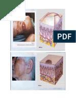 lesiones cutaneas primarias