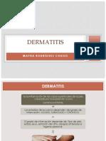 Dermatitis Mayra