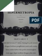151300166-HIPERMETROPIA