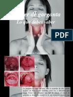 Constantino Parente Castillo - Cáncer de Garganta, Lo Que Debes Saber