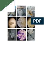 Gambar Parasitologi Toxoplasma Gondi