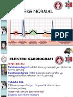 Chapter 17 EKG Normal