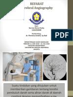 Referat Cerebral Angiography