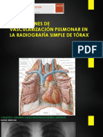 Patrones Vasculares Rx Torax