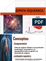 Cardiopatia Isquemica