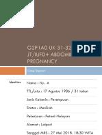 Abdominal Pregnancy