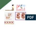 Gambar Impaksi Odon Operkulektomi