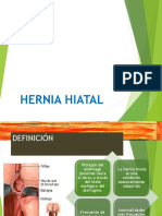 presentacion Hernia Hiatal