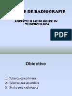 ASPECTE RODIOLOGICE IN TBC.pptx