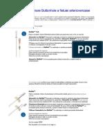 Metoda de Puncţionare Buttonhole a Fistulei Arteriovenoase