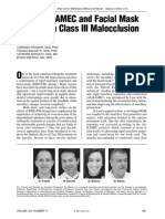 Early Alt-RAMEC and Facial Mask Protocol in Class III Malocclusion