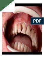 Adeziunea La Smalt Si Dentina