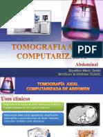 Tomografia axial computarizada abdominal