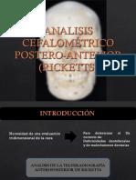 ANALISIS CEFALOMETRICO POSTERO-ANTERIOR (RICKETTS) 2.ppt