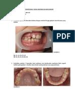 Tugas Mixed Dentition