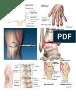 Skenario 5 Osteoarthritis