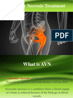 Ayurved Avascular Necrosis Treatment | Sukhayu Ayurved
