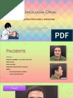 Fotografias Clinicas Semiologia Oral MAJO