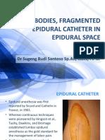 [Edit] Foreign Bodies, Fragmented Epidural Catheter in Epidural