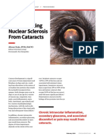 ProP_Differentiating Nuclear Sclerosis From Cataracts(1)