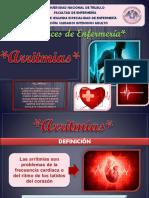 ARRITMIAS Grupo4