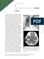 clinical tuberculoma