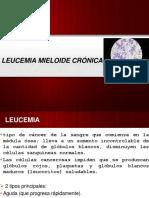 perezsantelizalejandra-leucemia