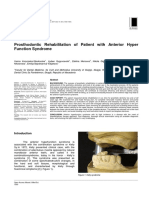 Prosthodontic Rehabilitation of Patient With Anterior Hyper