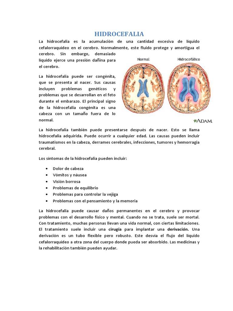 Signos de acumulación de líquido en la cabeza