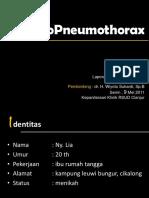 Hydro Pneumothorax Fix.pptx