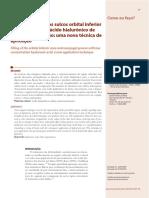v2 Preenchimento Dos Sulcos Orbital Inferior e Naso Jugal Com Acido Hialuronico de Baixa Concentracao Uma Nova Tecnica de Aplicacao