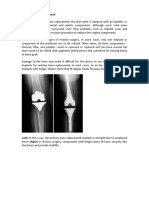 Revision Knee Replacement Surgery pdf | Shri Ramchandra Joint Relacement Centre  in Guntur |  Vijayawada | Prakasam | AP | India