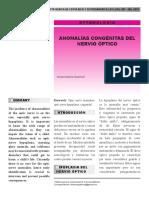 Anomalias Congenitas en El Nervio Optico