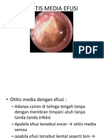 Otitis Media Efusi.ppt