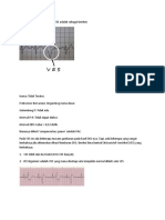 Adapun Gambaran EKG Pada VES Adalah Sebagai Berikut