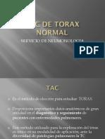 Tac de Torax Normal 17