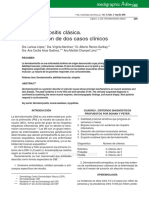 Dermatomiositis clásica